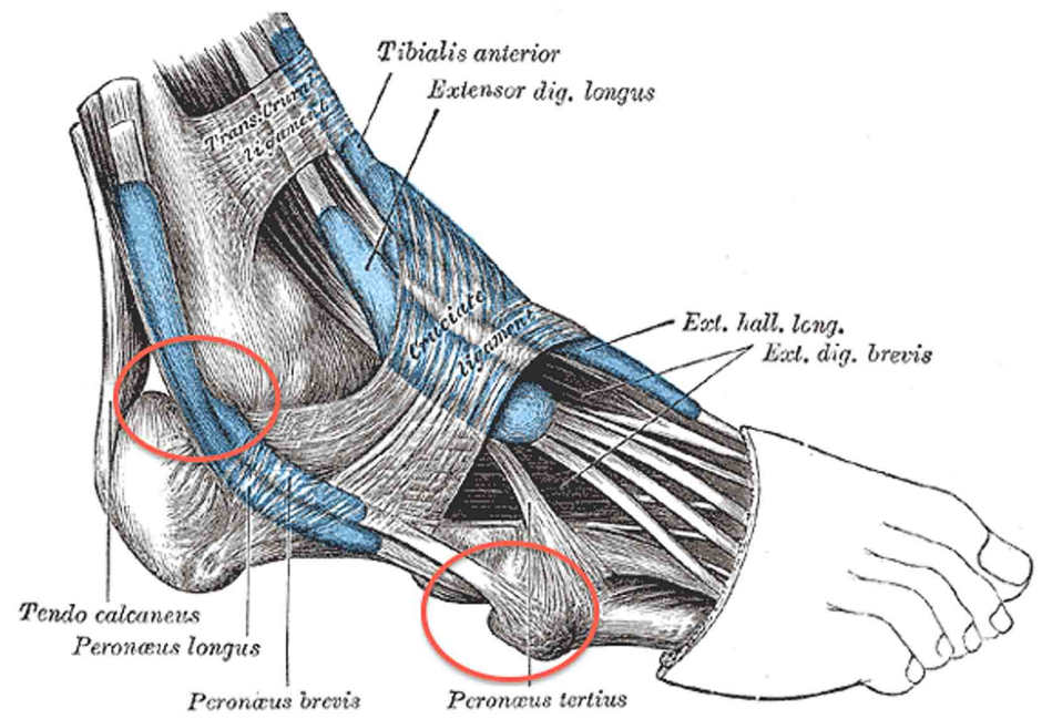 PERONEAL TENDONITIS /PERONEAL TENDINOPATHY IN RUNNERS - Corporate Cup