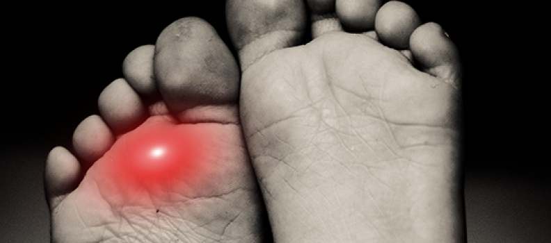 PAIN IN YOUR TOES WHEN RUNNING? YOU MAY HAVE METATARSALGIA